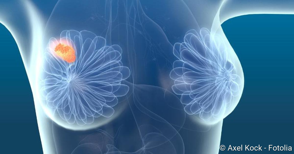 Hilfe bei fur brustkrebs grunde