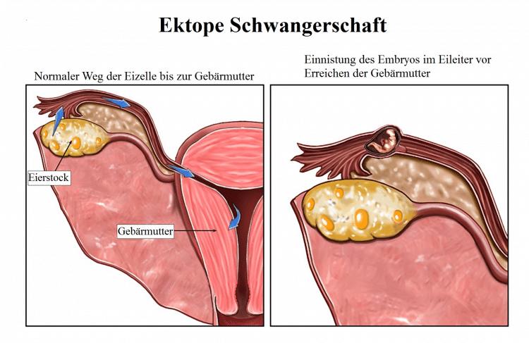Verursacht blutungen nach fehlgeburt sex