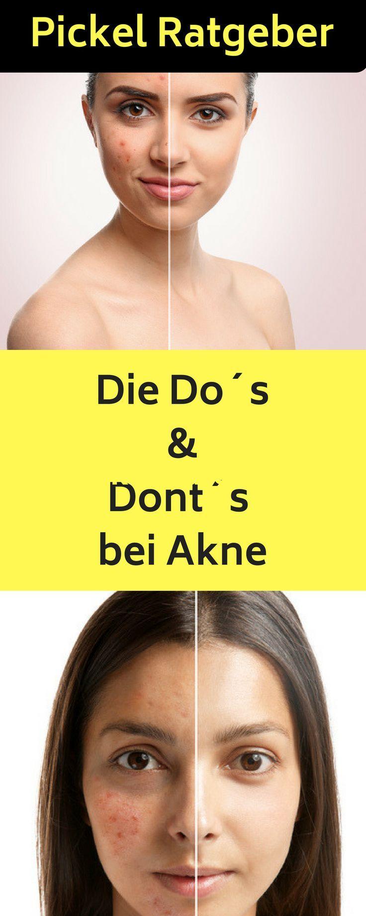 Erwachsenen akne fur home heilmittel
