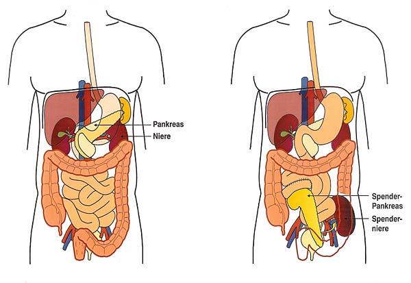 Leber transplantationen erwachsenen lebenden spender