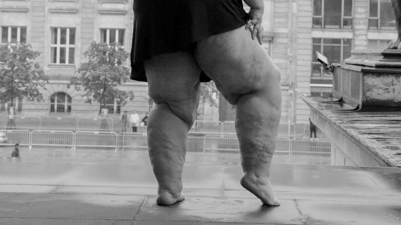Beine altere verbreitung frauen die