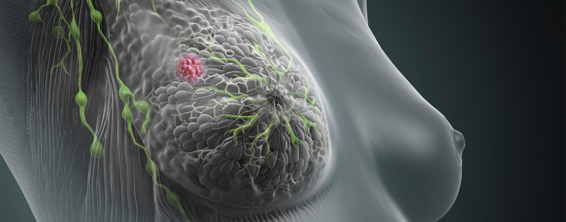 Symptome mit es brustkrebs die gibt
